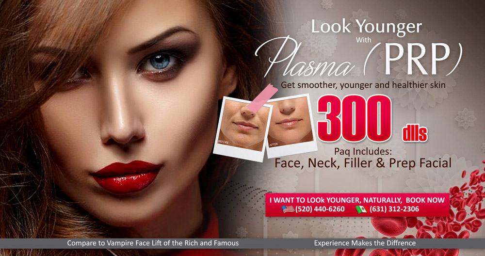 LaserTech Vampire Facelift Promo - March and April 2017